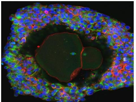 Researchers grow human eggs in laboratory for the first time